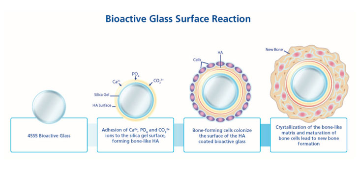 Bioglass 45S5 and bone growth promotion from implant and tissue interactions (Source)