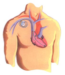 Figure 4. Dual chamber pacemaker [D]