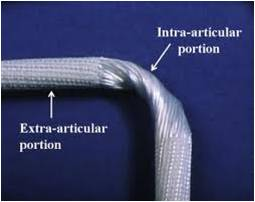 File:LARS ACL rope.jpg