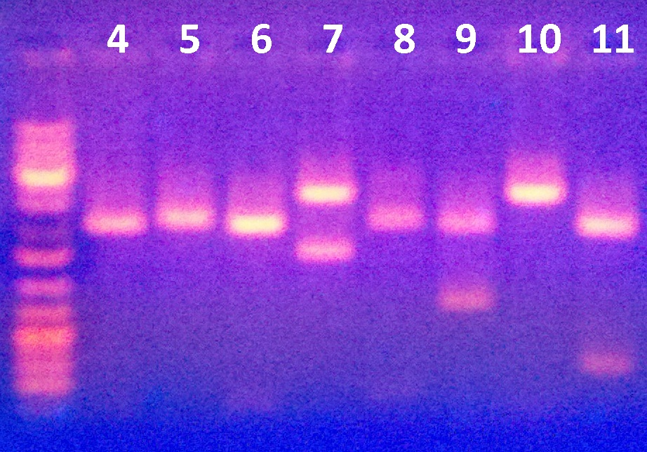 Image:Electrophoresis_March_29_2012.jpg