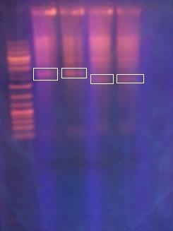 File:Electrophoresis6.jpg