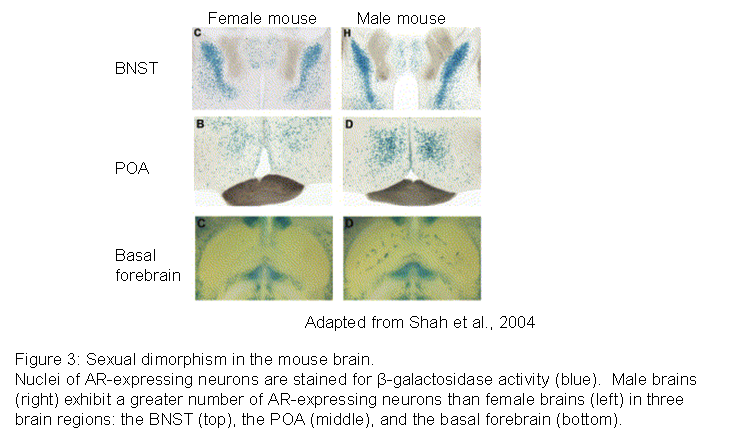 Sexually dimorphic nucleus human brain