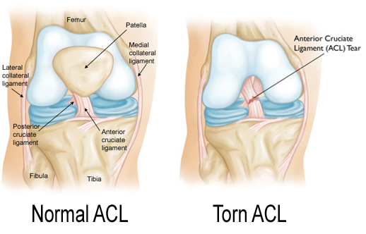 File:Normal-ACL.jpg