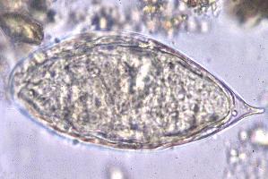 File:Schistosoma egg.png
