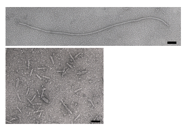 Electron micrographs of microphage described by Specthrie et al[[1]], images courtesy of Esther Bullitt
