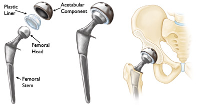 Source C: The Pieces Which Form a Hip Prosthesis, The Assembled Prosthesis, and an Implanted Prosthesis.