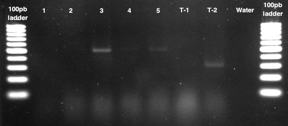File:Gel 25 07 PCR.png
