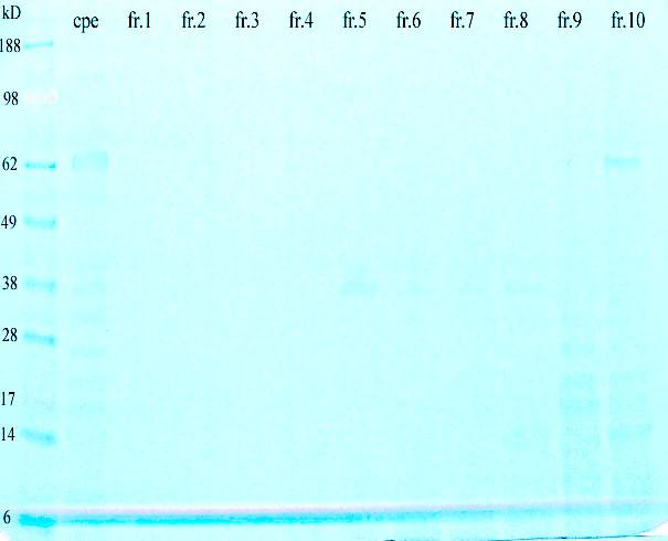 File:Gel peanut fractions052609.jpg