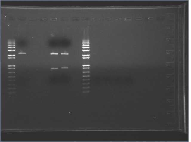 """results of PCR"""