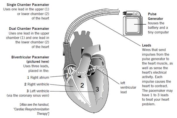 File:Types of pacemakers.jpg