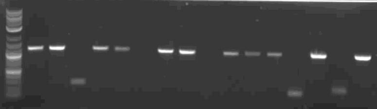 File:RBS tester colony PCR.JPG