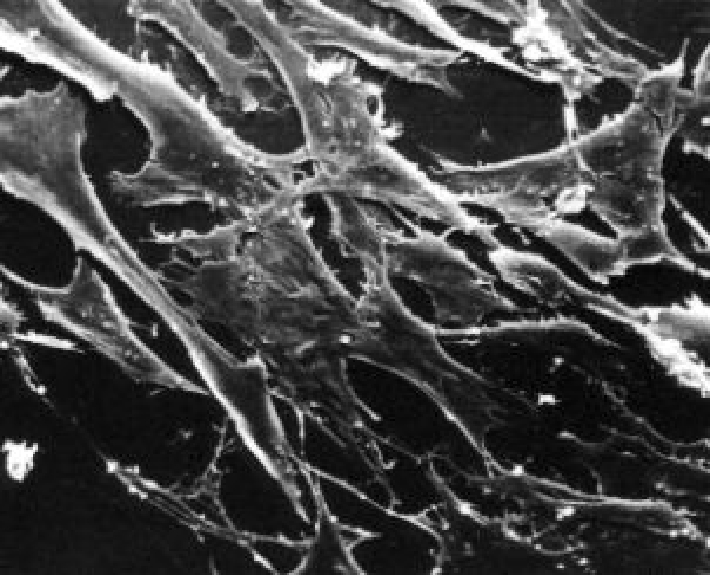 Image:Be109normalmousefibroblasts.jpg