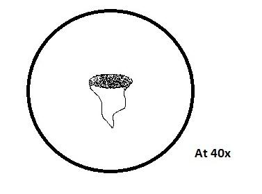 File:Vorticella.jpg