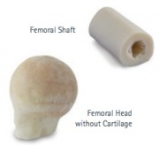 A sample femoral graft from AlloSource.[6]