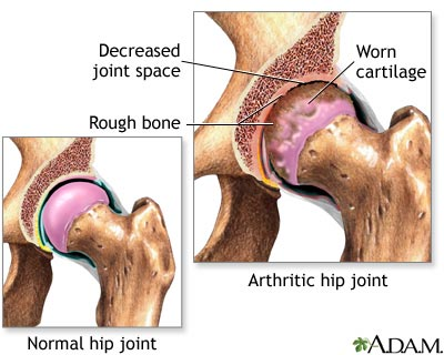 Effects if arthritis in hip due to osetoarthritis [10]