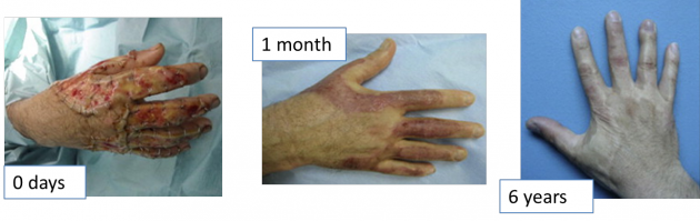 E. Progression of severe burn healing using Integra.