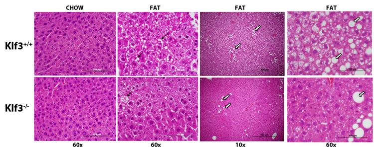 File:Male-liver-histo-sml.jpg