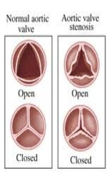 A Normal and Stenotic Aortic Valve - On the left, there is an image of a normal aortic valve in both the open and closed position. On the right, the image represents aortic valve stenosis. As can be seen a valve suffering from stenosis has a narrowed opening which decreases blood flow making the heart work harder. Reference 5