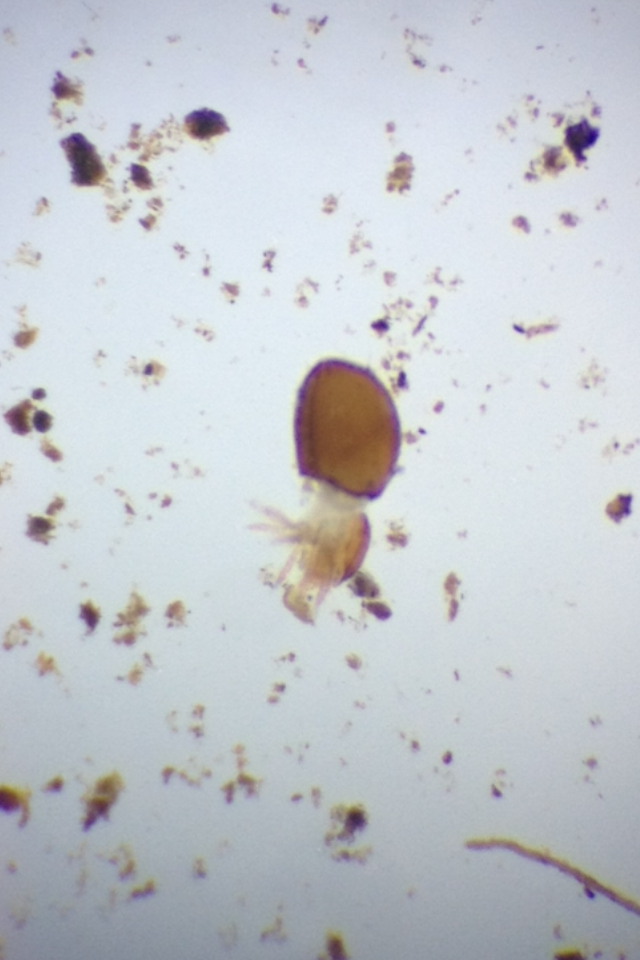 Ckinvertebrate3.PNG