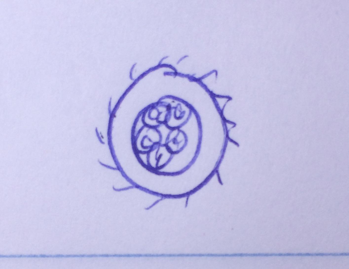 Actinosphaerium38.jpg