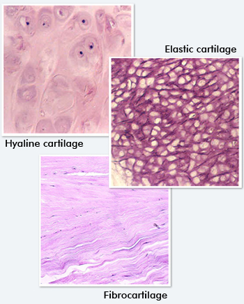 Hyaline cartilage vs Fibrocartilage [18]