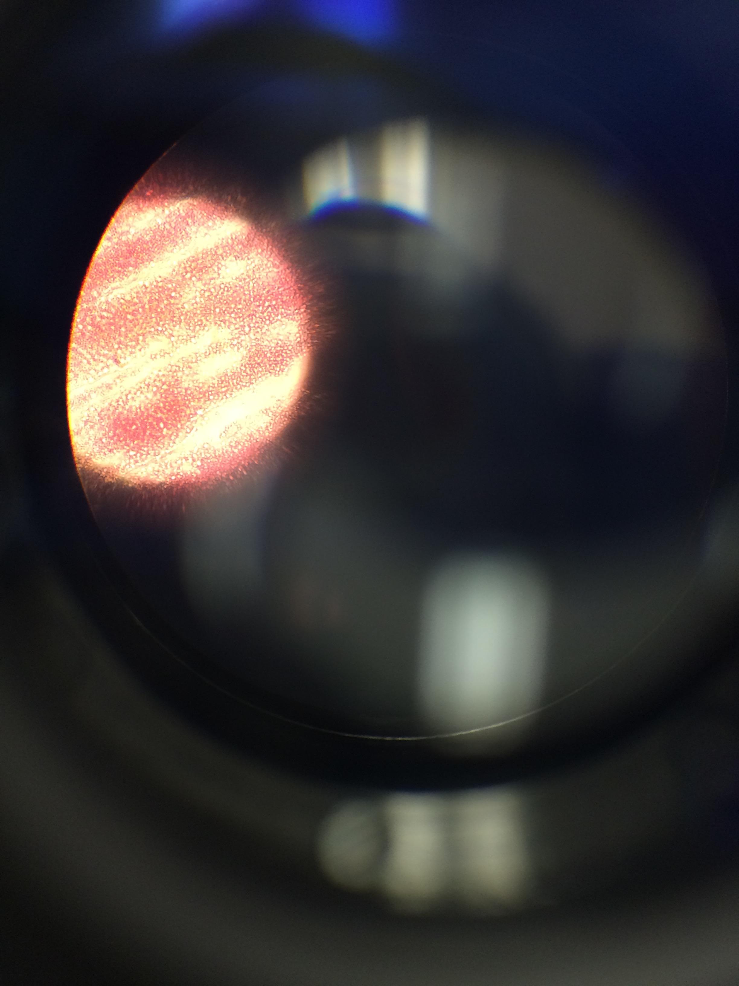 Gram stain 10^-5.jpg