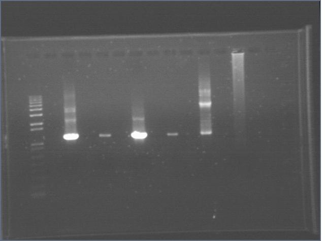 File:2006717 Cyano 3rd PCR gel control 2.jpg
