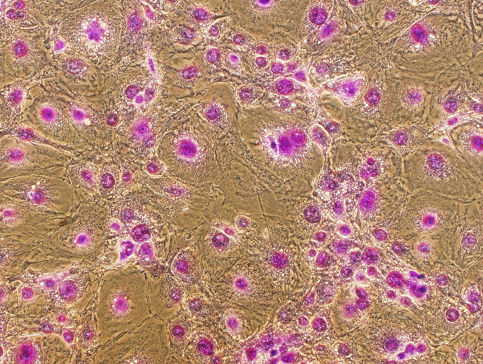 File:Crystal Violet Staining feeders.png