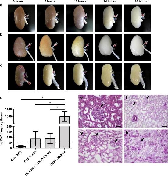 Decellularization of Porcine Kidneys.jpg