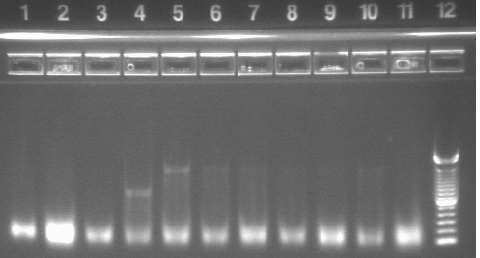 11-15 duo in per21 pcr mxh.jpg