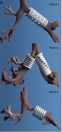 File:3D printed stents Morrison.png
