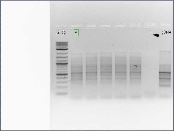 File:Pflegerlab 2012-07-03 10hr 55min colony PCR (round 2) of acsA-only amplification.jpg