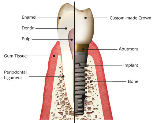 File:Dental-Implants…What-are-they.jpg