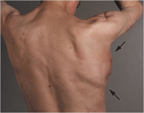 Figure 3.Construct in muscle region 3 weeks post-surgery.