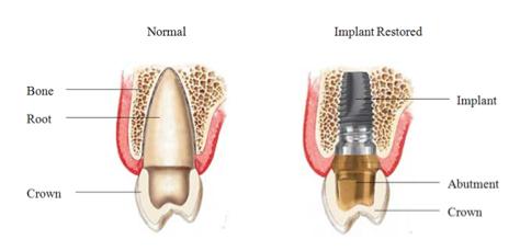 File:Implantdetail.jpg