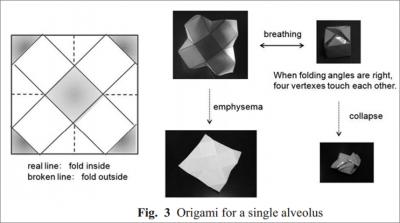 Alveoli.