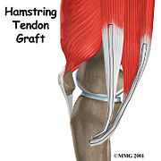 Source 15: Hamstring tendon used for autograft..
