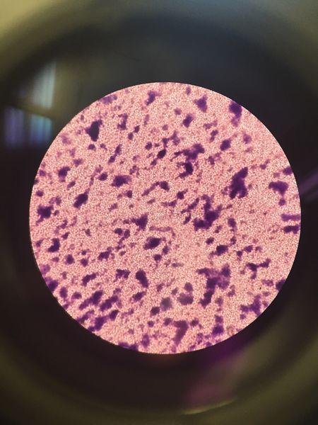 File:Bacteria 10^-7.JPG