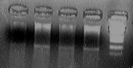 PKU 080512 ADH-plasmid-check(95min).tif