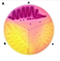 "Cells growing on MacLac Image from ""The art and design of genetic screens: Escherichia coli""by Howard A. Shuman & Thomas J. Silhavy in Nature Reviews Genetics 4: 419-431 (June 2003) doi:10.1038/nrg1087"