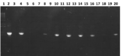 Fig 1. Gel image showing the PCR from the 16S sequences. Lane 1 is a 1Kb+ ladder, and lanes 2-20 alternatively contain the 10 samples. Only lanes 6 and 18 didn't work.
