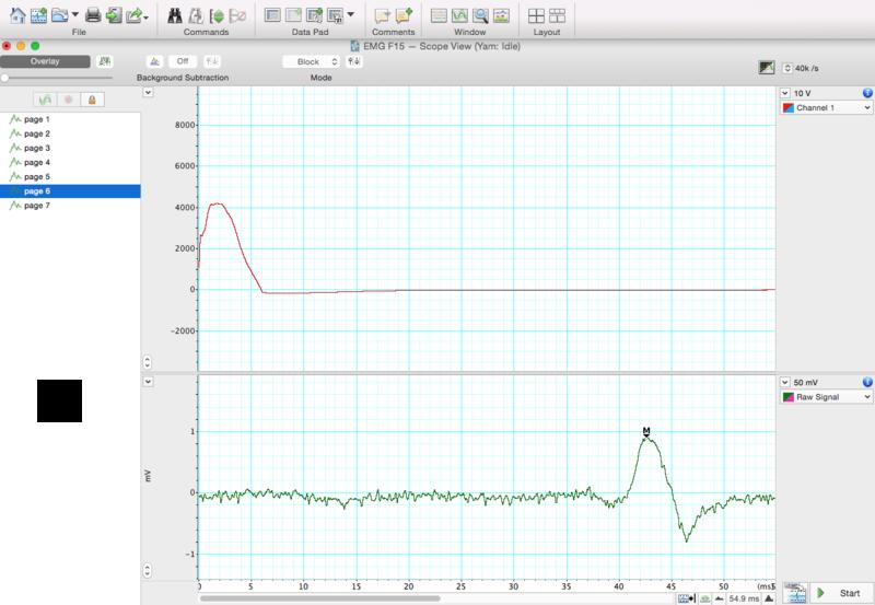 File:EMG-Sample for F15.png