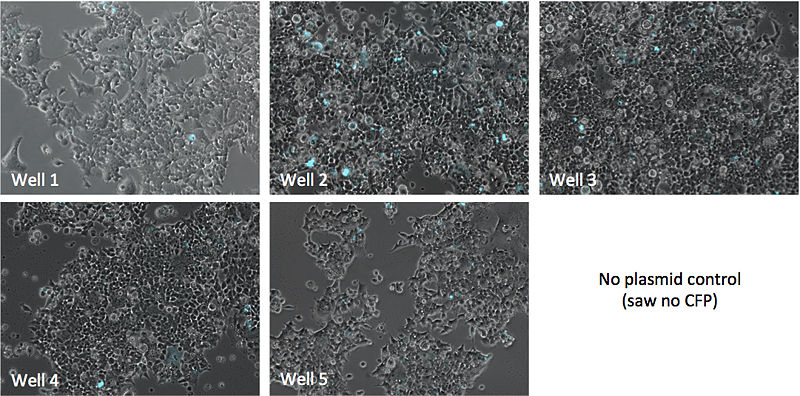 File:KAH102015 cells1.jpg