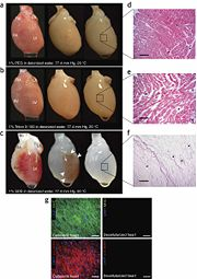 Depiction of decellularized heart reveals an extracellular matrix scaffold for in vitro organ growth[11].