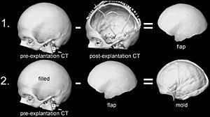 The doctor uses a CT scan of the patient's skull before surgery (often taken upon onset of cranial trauma), then after the flap of skull has been removed. Through digital subtraction of the two images, the flap's shape can be constructed as a mold in a 3D printer.  [17]