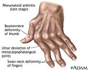 Deterioration of joints in fingers caused by rheumatoid arthritis[9]
