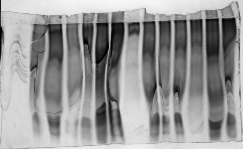 Image:SDS-PAGE gel run with resolving gel buffer instead of the proper electrode buffer.jpg