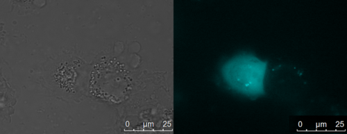 Fig 3: The left panel shows the brightfield microscope image of HT1080 cells transduced with an rAAV, which displays the penta-Gly sortase motif and carries a CFP variant as gene of interest. The right panel shows the fluorescence image of these cells. Fluorescence of the HT1080 cells after infection with this rAAV indicates functional assembly of the virus and the ability to deliver the gene of interest, which is finally expressed in the target cell.