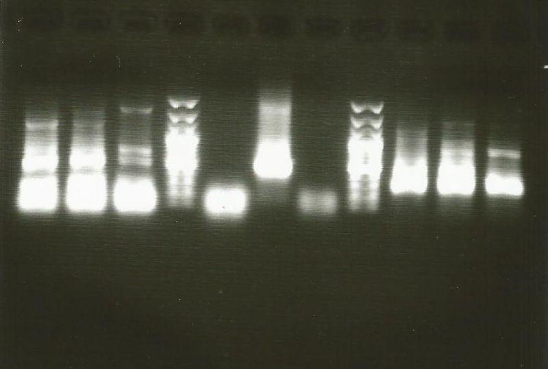 File:PCR gel.jpg