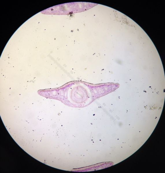 File:Planaria cross section.JPG